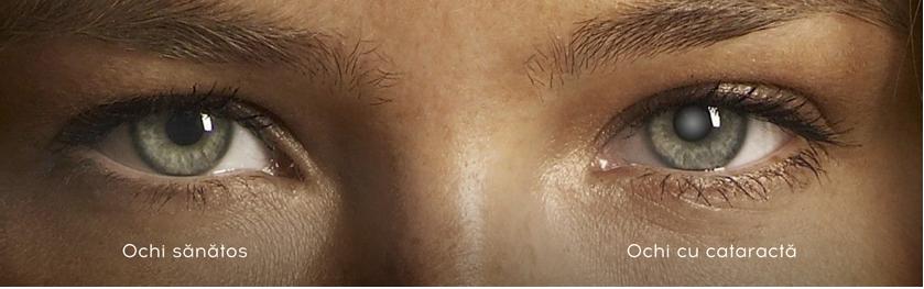 Как выглядит катаракта